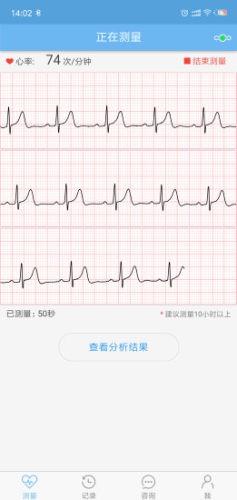 数维康心电图1